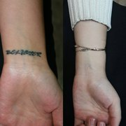 Лазерное удаление татуировок и татуажа в Алматы
